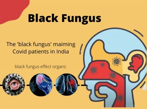 How Not Knowing About Black Fungus Can Make You Blind